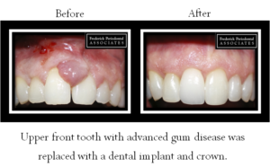 Before and after of advanced gum disease