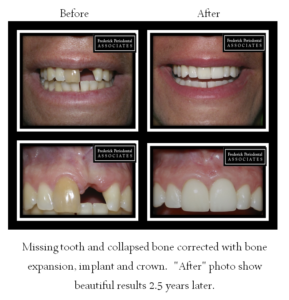 Before and after implant and crown after 2.5 years