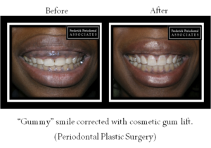Before and after Periodontal Plastic Surgery